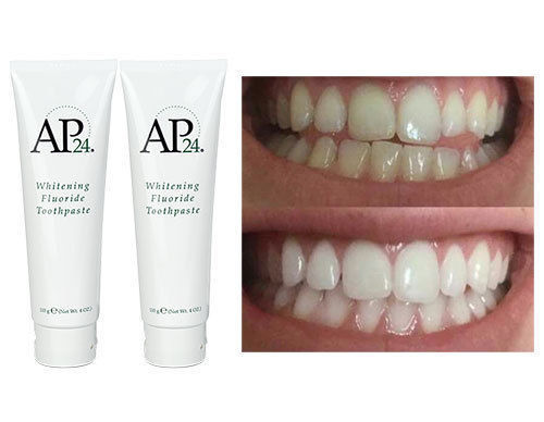 משחת שיניים מלבינה