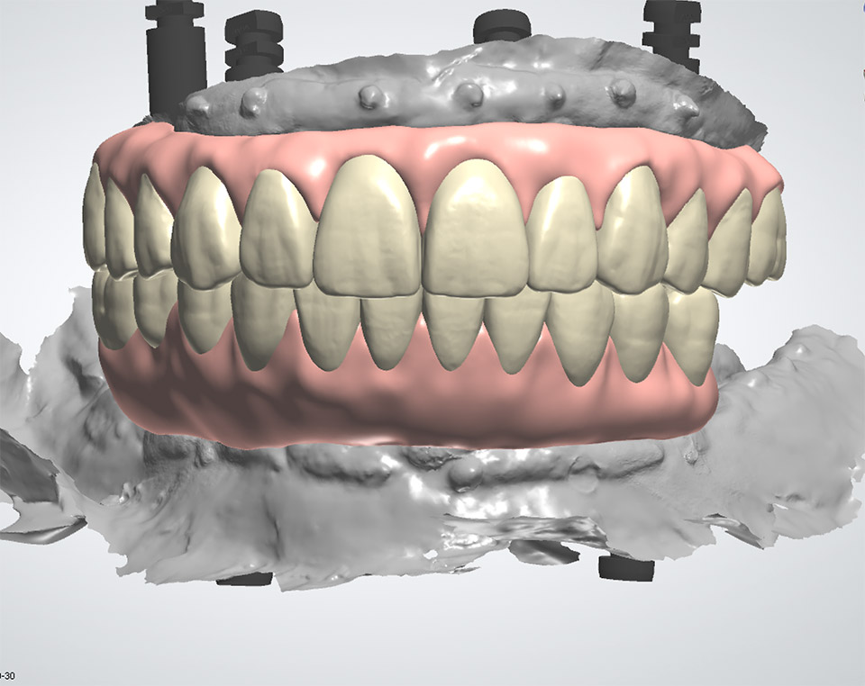 Zirconia hybrid restoration with gingiva full upper and lower arches