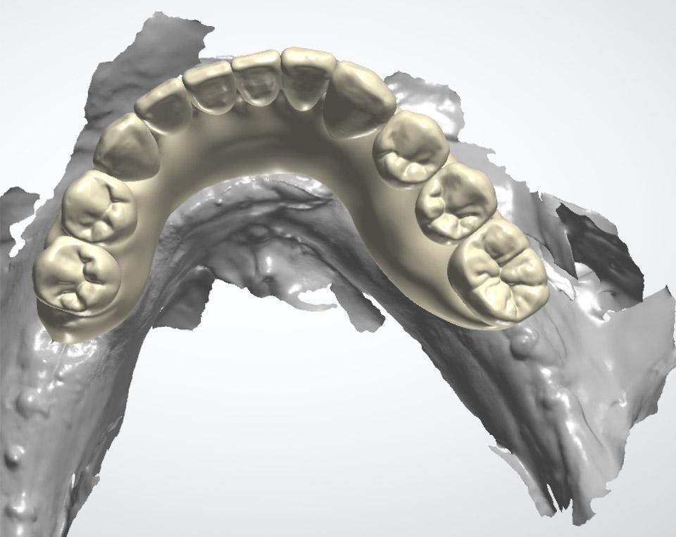 Zirconia hybrid restoration with gingiva lower arch