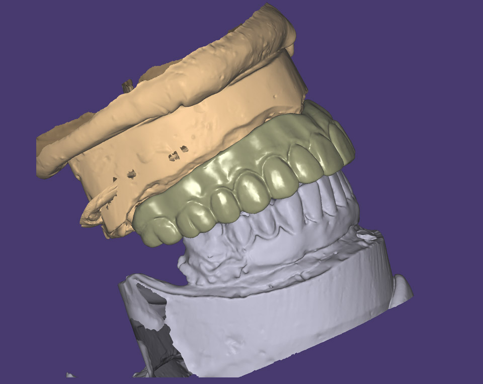 Copy mill from an existing denture (Right view)
