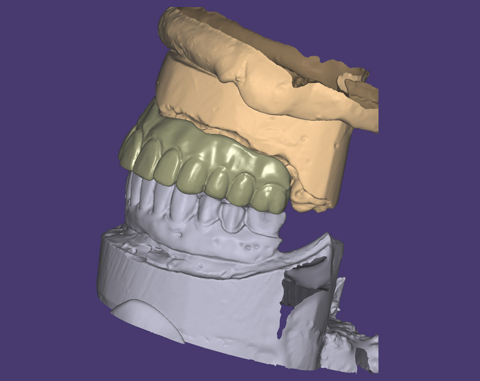 Copy mill from an existing denture (Left view)