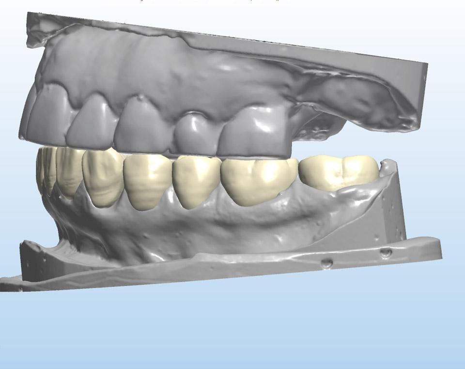 Digital Waxup on unprepared model (Left view)