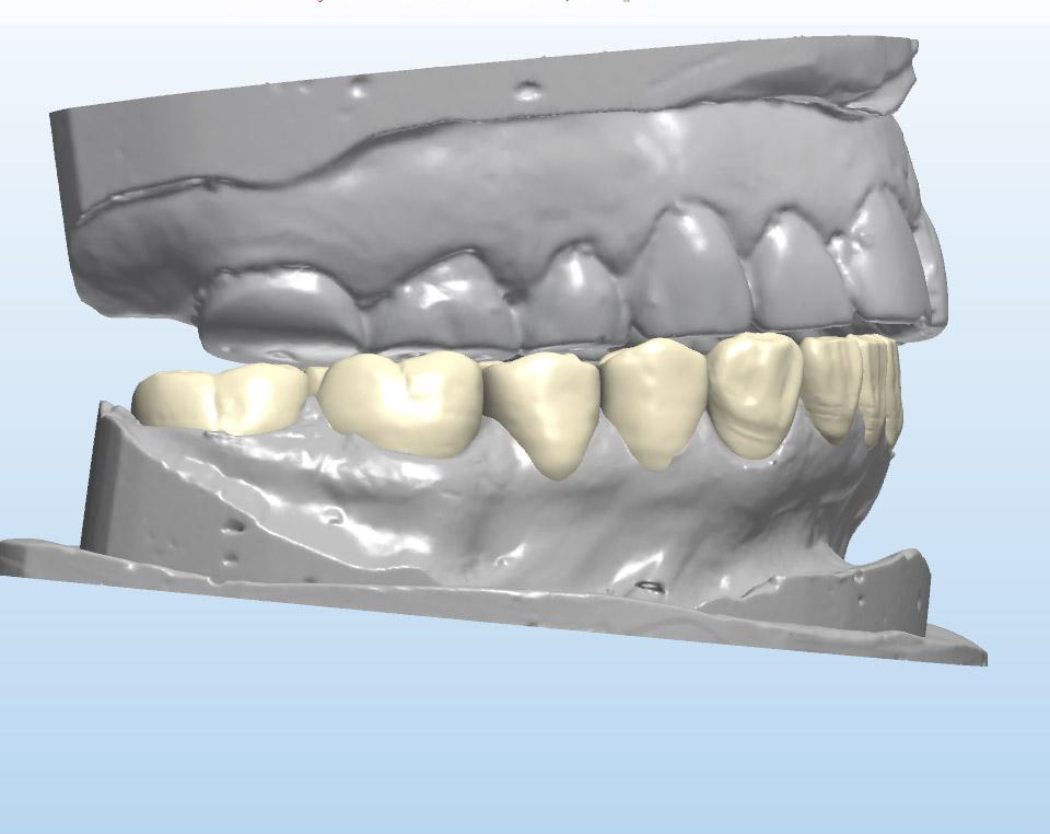 Digital Waxup on unprepared model (Right view)