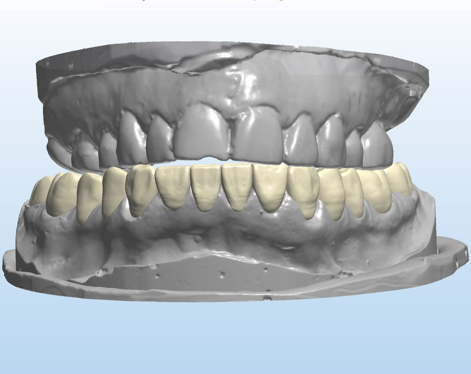 Digital Waxup on unprepared model