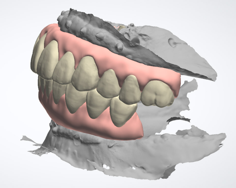 Zirconia hybrid restoration with gingiva full upper and lower arches (Left view)